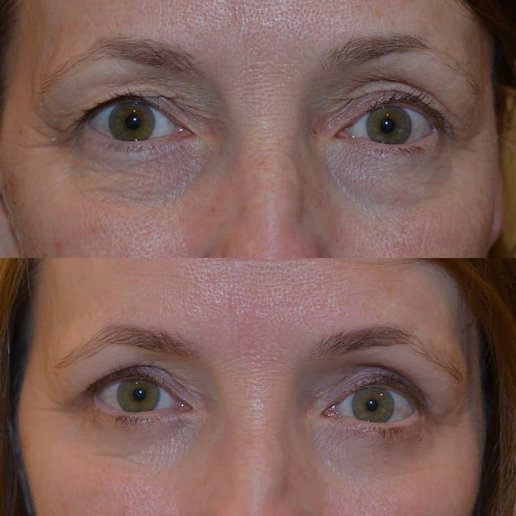 woman with hazel eyes before and after for upper and lower blepharoplasty