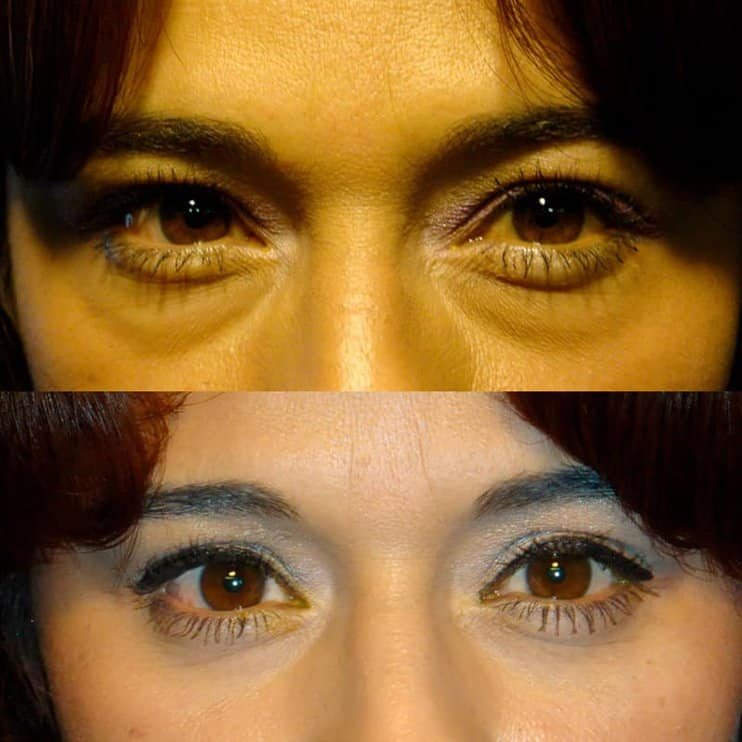 under eye blepharoplasty before and after for woman aged 30 to 35, fixing puffy bags under eyes