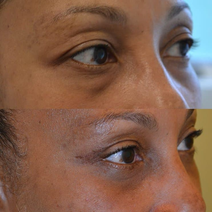 woman with brown eyes before and after for lower and upper blepharoplasty, from the right side
