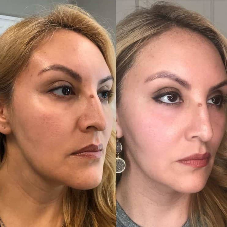halo laser treatment before and after for woman aged 40 to 45, removing crepiness and dullness