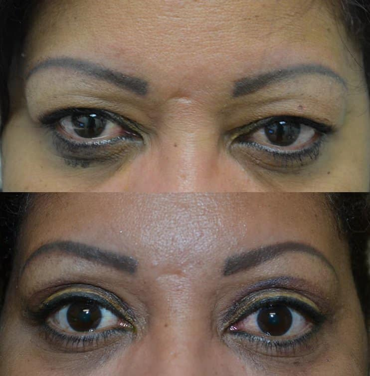bilateral upper blepharoplasty before and after results of a woman aged 45 to 50, reducing extra skin on eyelids