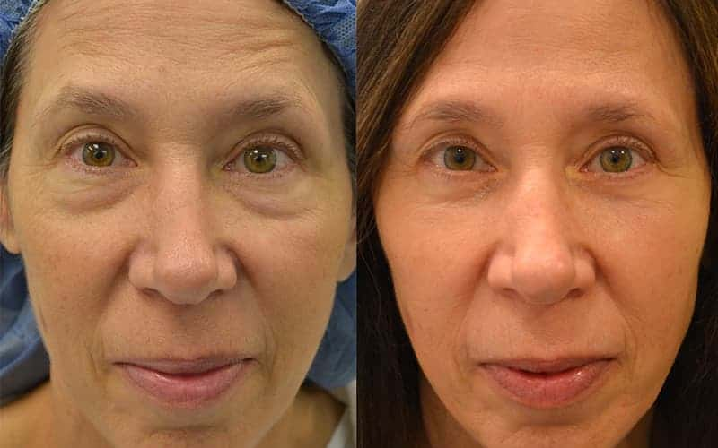 woman aged 60 to 65 before and after bilaterial lower eyelid blepharoplasty