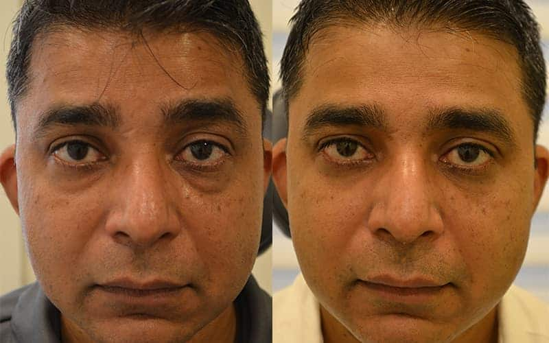 lower blepharoplasty before and after for man aged 40 to 45, concerned about looking tired