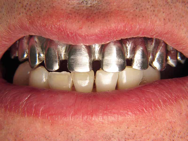 Цялостно лечение със зъбни импланти