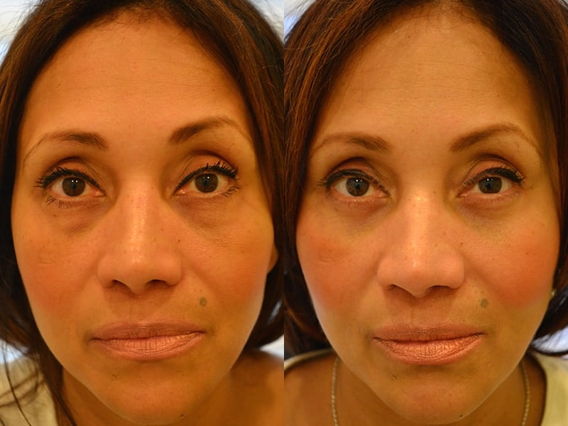 lower blepharoplasty before and after for woman aged 50 to 55, for a permanent solution to puffy eyelids