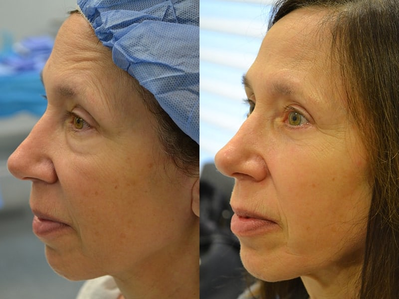 lower blepharoplasty before and after photos of a 60 year old woman's left side