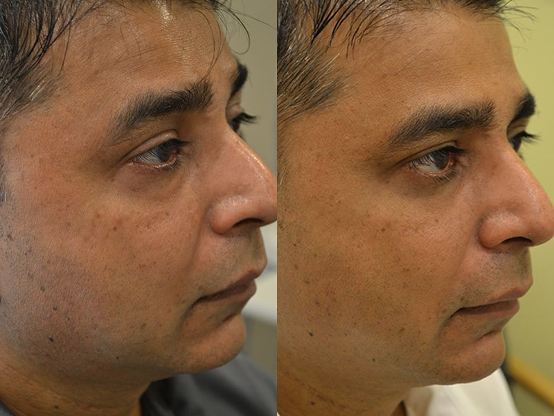 lower blepharoplasty before and after photos of a 40 year old man's right side