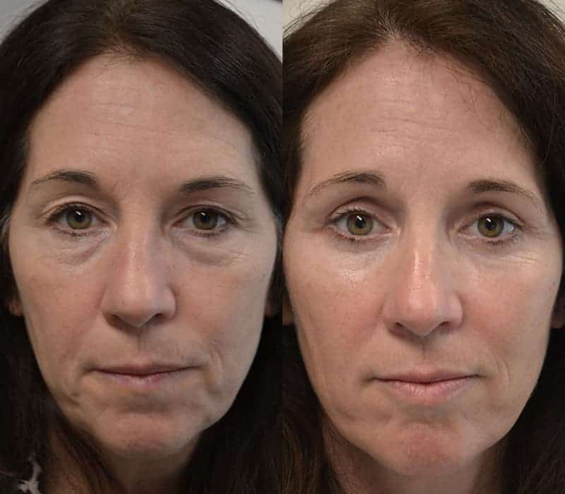 lower and upper blepharoplasty before and after of woman aged 50 to 55