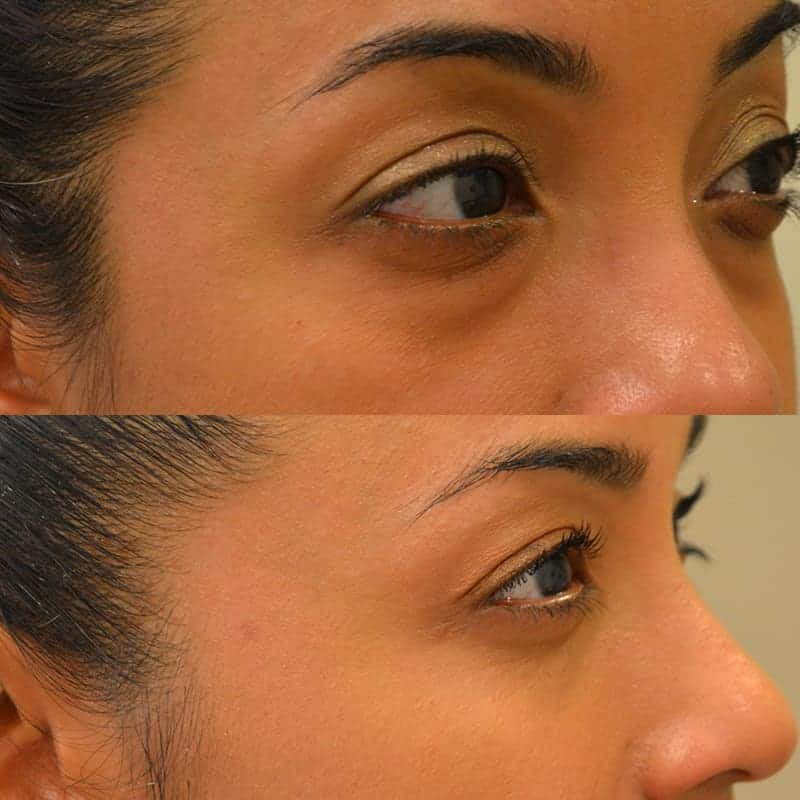 lower blepharoplasty before and after photos of a 40 year old woman's right side