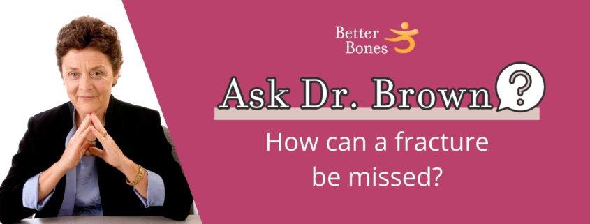 Missed fractures